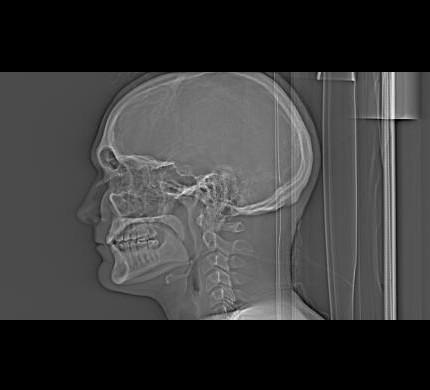 My Skull in Profile